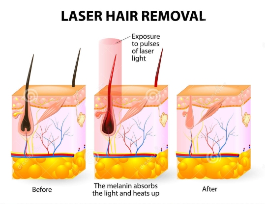 hair-removal-laser